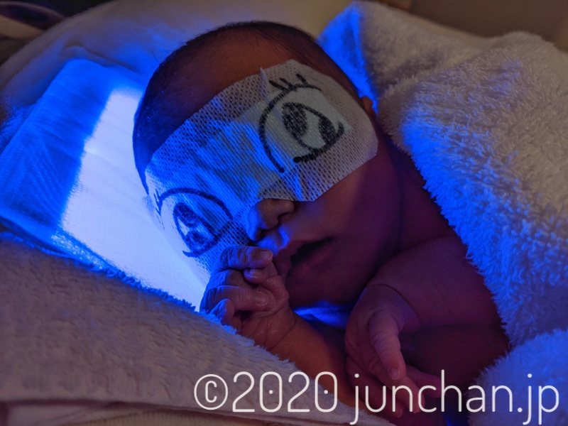 光線治療中の娘